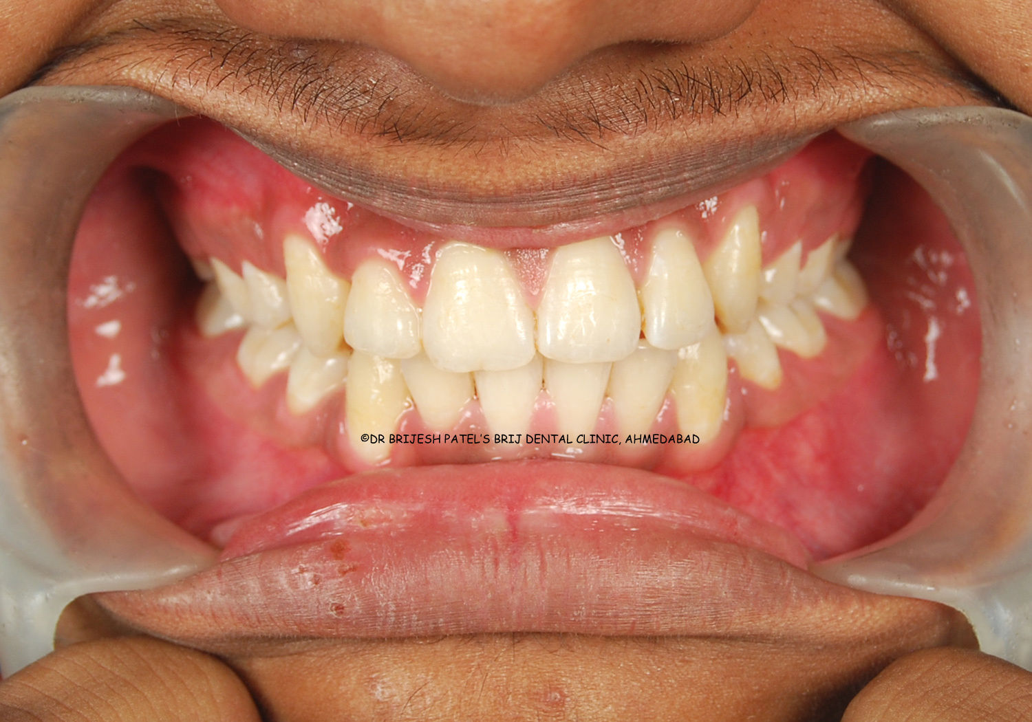 Braces Before Amp After Pictures Orthodontic Before Amp After