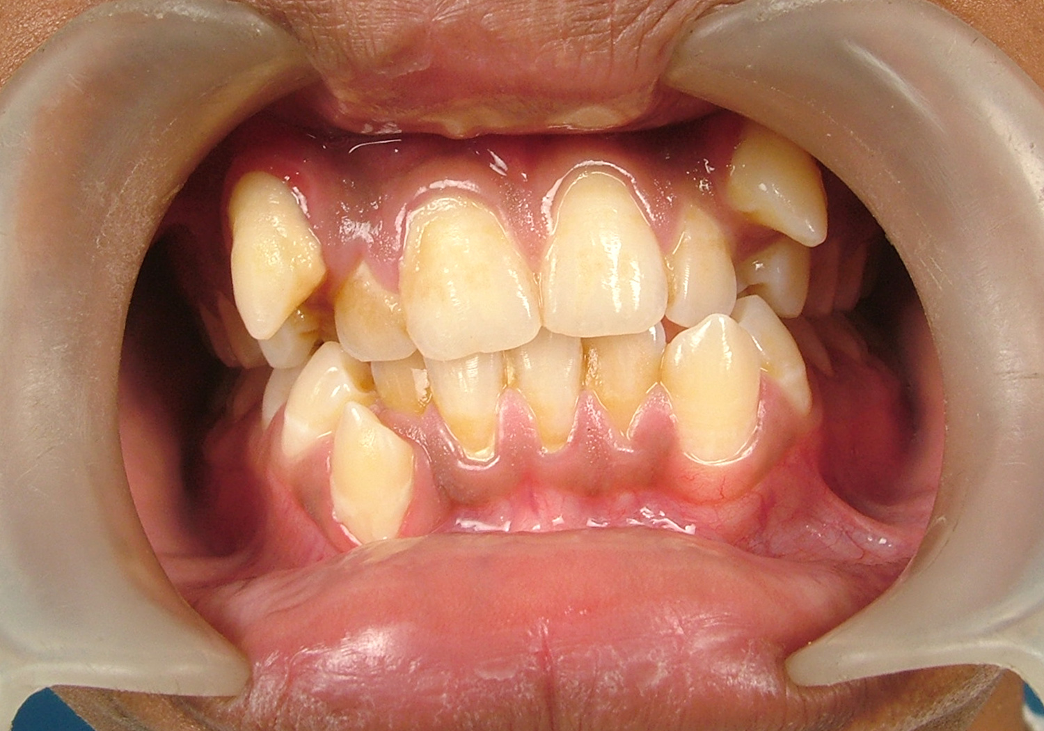Braces Before & After Pictures