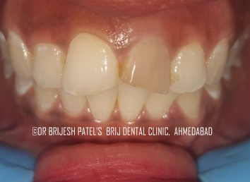 Dental Crown And Bridges Treatment Ahmedabad India