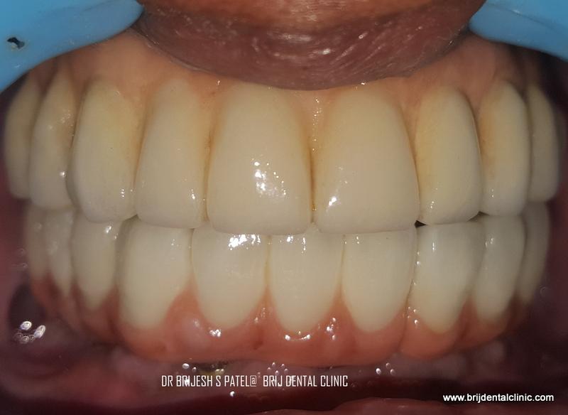 Cost Of Dental Implants Ahmedabad India Best Dental