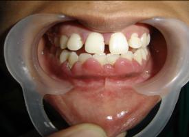 Painless Laser Gum Surgery Ahmedabad No Cut No Bleed