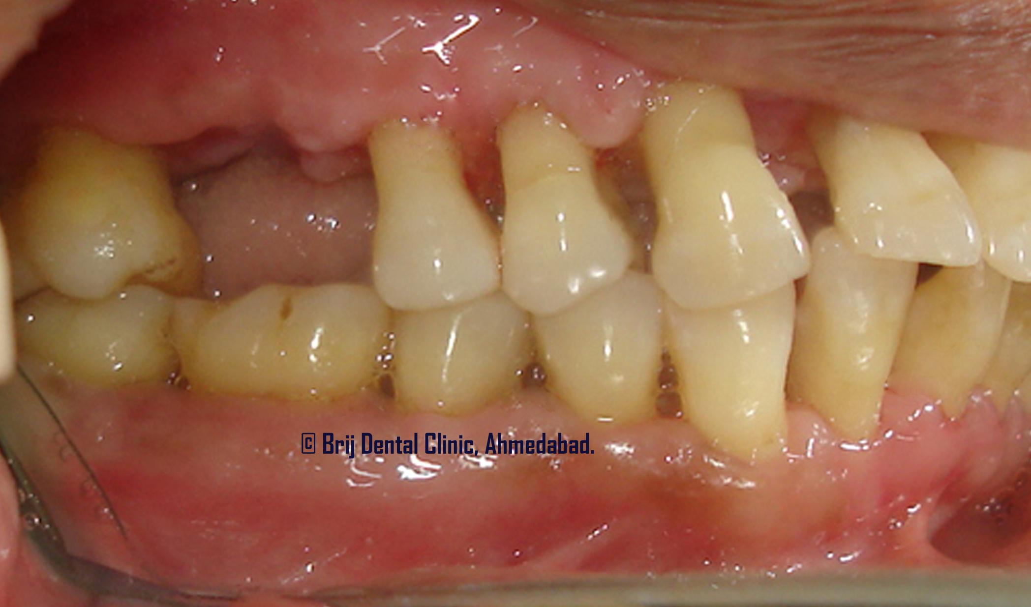 Laser Dental Treatment Gums Cavities Minor Surgeries